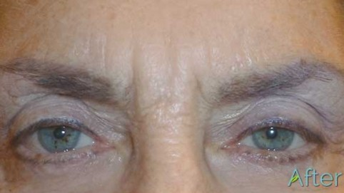 6_brow-and-eyeliner-After-removal-and-correction