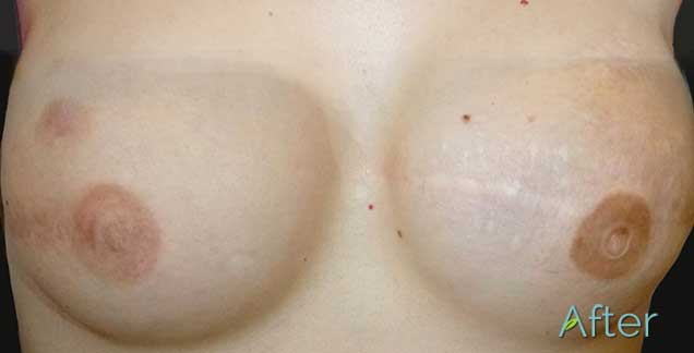 Discolored spot on breast