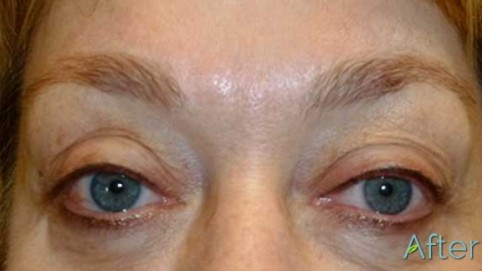 eyebrows after - JuvEssentials.com