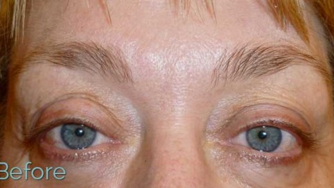 before eyebrows - JuvEssentials.com