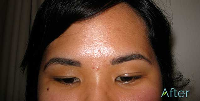 11_Eyebrow_Removal_after