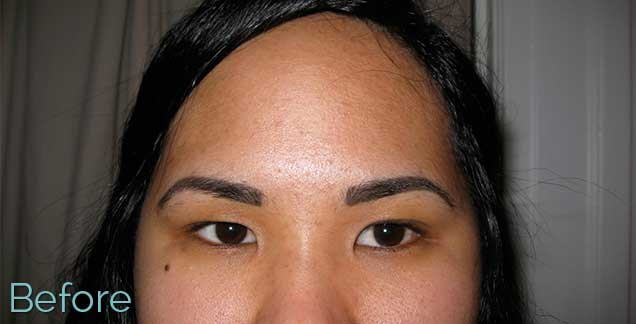 11_Eyebrow_Removal_before