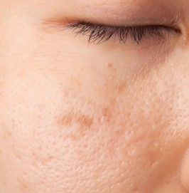JuvEssentials - Skin Care, vitamin e, minimize scarring, scars http://juvessentials.com