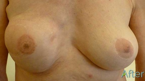 JuvEssential-breast-repigmentation-after2