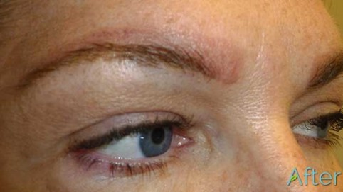 1_blocky-brow-tattoo-removal-After-(1-session)