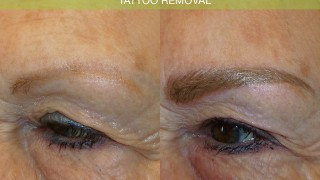 tattoo removal before after #juvessentials