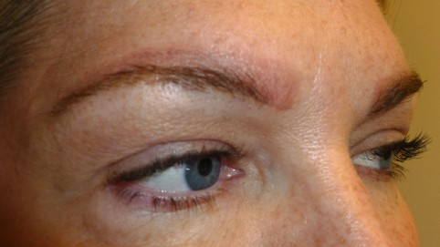 brow tattoo removal after - JUVEssentials