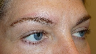 brow tattoo removal - Juvessentials