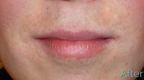 4_lips-with-soft-tint-look-After