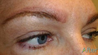 14-2_JuvEssentials_BlockyBrow_TattooRemoval_AFTER-session1