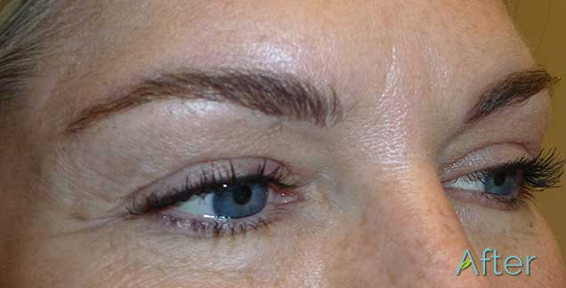 Once the skin is healed after getting a tattoo removal for Eyebrows tattoo removal laser