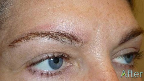 14-4_JuvEssentials_BlockyBrow_TattooRemoval_AFTER-Final