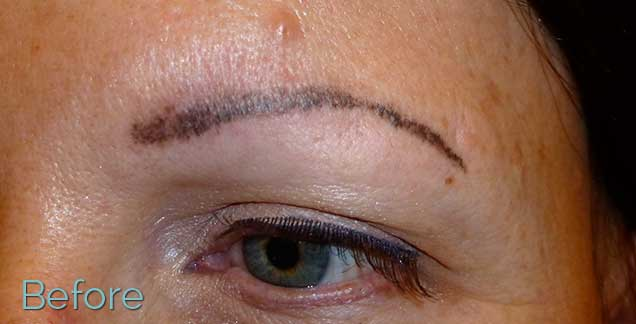 yes tattooed eyebrows can be pretty much completely removed to ...