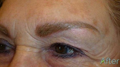 3-JuvEssentials_Blonde-Brow_AFTER