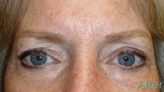 5_grey-blonde-brows-After