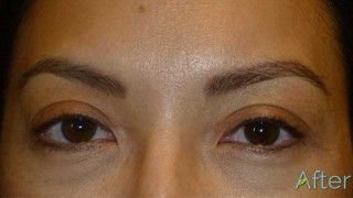 Eyeliner and Eyebrow Tattoo for Asian Skin
