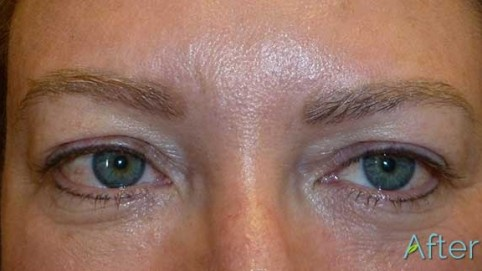 JuvEssentials_Blonde-Brow-Eyes_AFTER