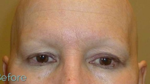No eyebrows due to alopecia universalis