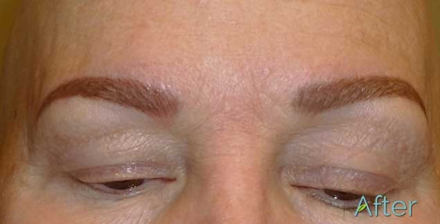 Tattooed eyebrows on client with alopecia