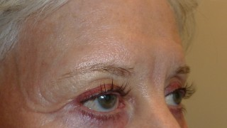 Eyelashes treated with Latisse