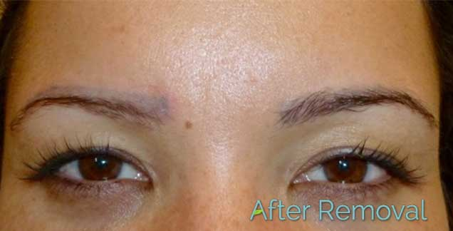 Juvessentials is 1 rated for cosmetic tattooing and for Eyebrows tattoo removal laser