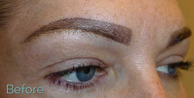 Procedures eyebrows juvessentials top rated cosmetic for Saline tattoo removal