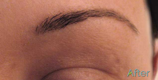 After-Eyebrows